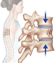 Compression Fractures and Lower Back Pain