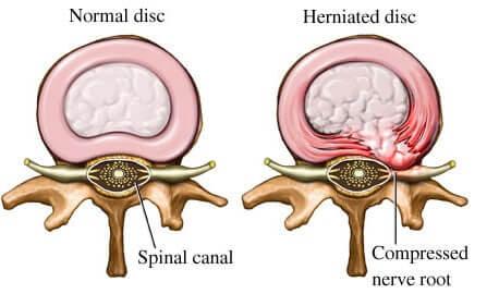 Résultats de recherche d'images pour «herniated disc»