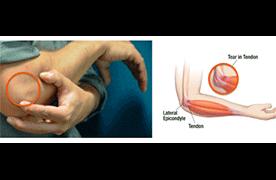 joint pain due to Epicondylitis
