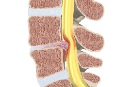 pinched nerve back pain