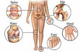 joint pain due to arthritis pain