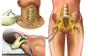 Peripheral Nerve Injection