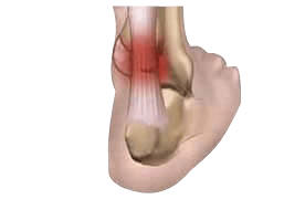 Tendinopathy incl Achilles tendonitis