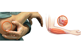 Epicondylitis - Tennis Elbow / Golf Elbow
