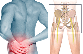 Sacro-iliac Joint Pain