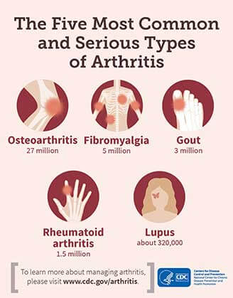 5-most-common-types-of-arthritis