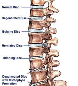 back disc problems