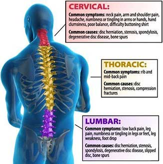 Post surgery back pain diagram complete spine and pain care post surgery back pain diagram ccuart Images