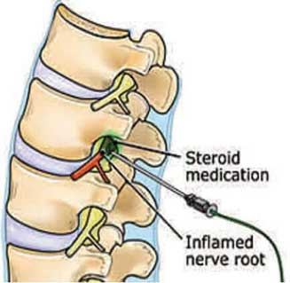 steriod injection