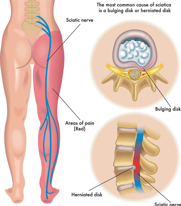 Sciatica And Sciatic Nerve Pain Causes And Treatments