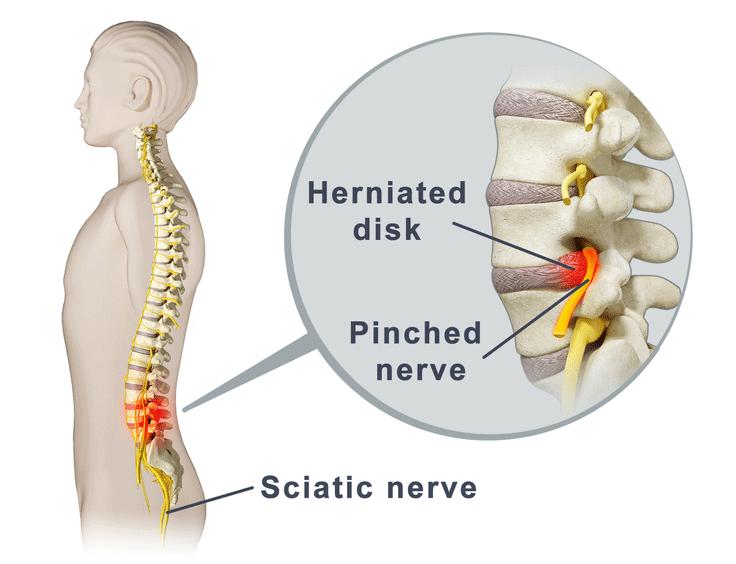 Sciatica Pinched nerve